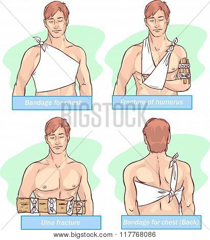 Vector Illustration Of Abandage For Chest ,fracture Of Humerus,ulna Fracture,bandage For Chest