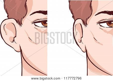 White Backround Vector Illustration Of A Ear Pinnin Otoplasty