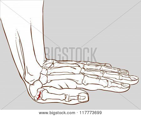 White Background Vector Illustration Of A Hand Fracture