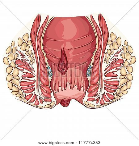 White Backround Vector Illustration Of A Hemorrhoid