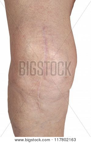 Scar On The Knee Of An Elderly Woman