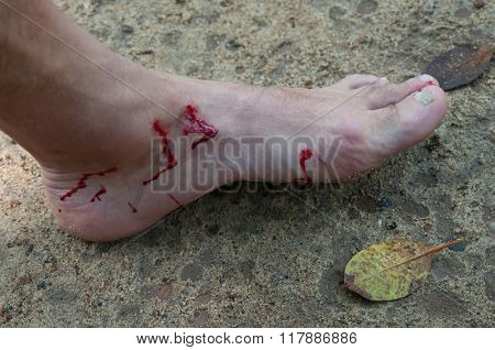 Bloody Foot