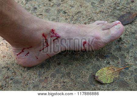 Bloody Foot