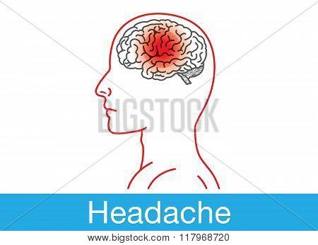 Headache outline