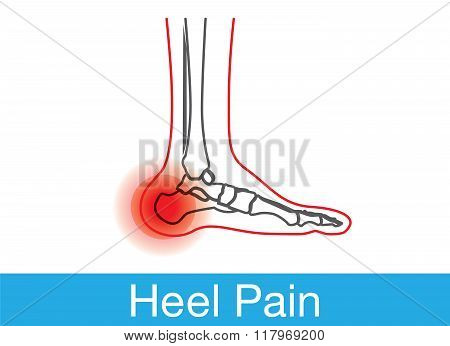 Heel pain outline