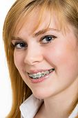 image of crooked teeth  - Beautiful young woman with brackets on teeth close up - JPG