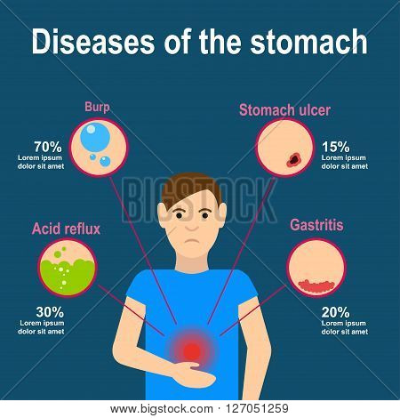 Stomach pain infografics. Causes of stomach pain. Burp, heartburn, gastritis and stomach ulcers. Flat design. Vector illustration