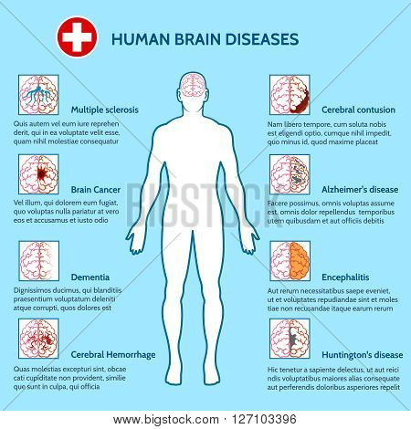 Mental Health and human brain diseases medical infographics vector illustration