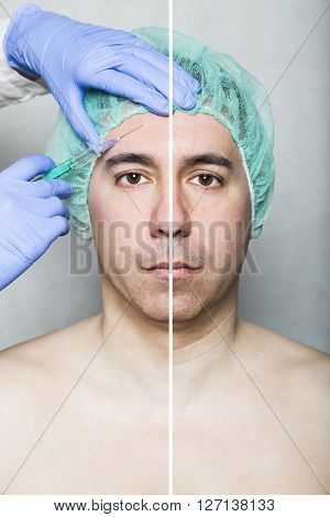 Before and After effect of hyaluronic beauty injection. Doctor aesthetician makes hyaluronic acid rejuvenation beauty injections in the forehead of male patient in a green medical cap