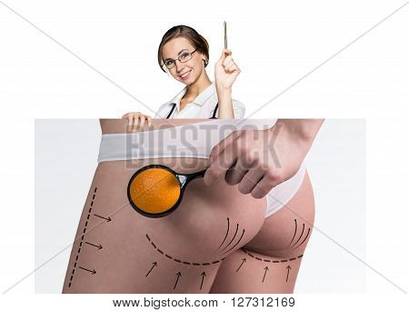 Female doctor holds placard with woman battocks and correction lines on them. Plastic surgery concept.