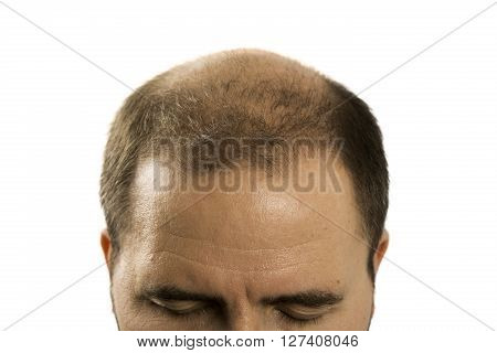 Baldness Alopecia man hair loss haircare medicine bald treatment transplantation