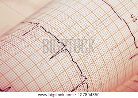 Recording ECG on paper. Medical background. Macro photo