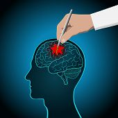 The Concept Of Brain Recovery, Memory, Stroke, Treatment Of Brain Diseases poster