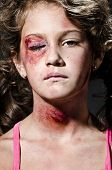 foto of accident victim  - Injured child posing as victim of domestic violence - JPG