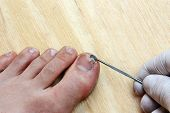 picture of scabs  - Treatment with a doctor surgeon broken off at the toe toenail - JPG