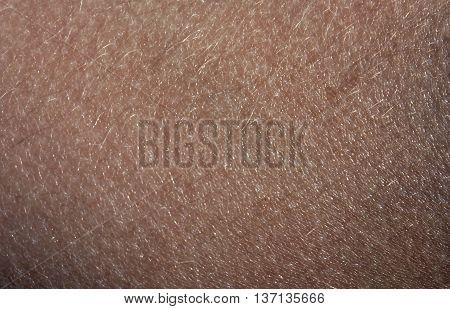 Human Skin With Hair.