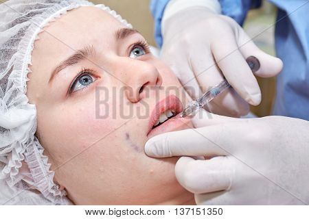 Procedure of lip injection with filler in clinic