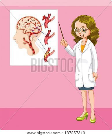 Doctor and brain tumor chart illustration