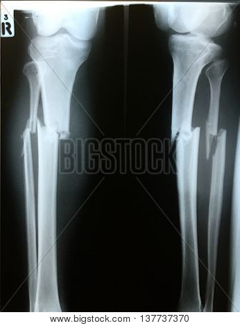 Film fracture both bone right leg in accident case