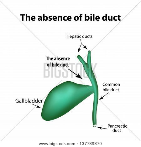 The absence of bile duct. Pathology of the gallbladder. Cholecystitis. The structure of the gallbladder. Infographics. Vector illustration on isolated background.