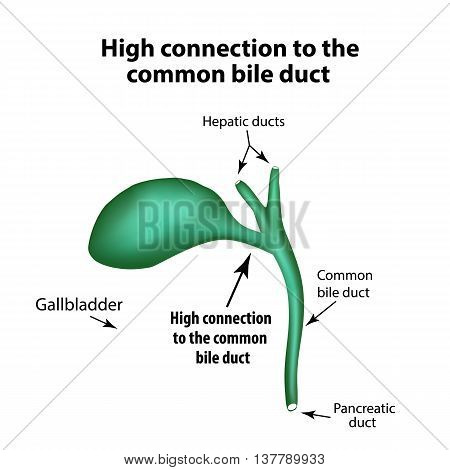 High connection to the common bile duct. Pathology of the gallbladder. Cholecystitis. The structure of the gallbladder. Infographics. Vector illustration on isolated background.