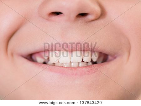 Close-up of young boy mouth with white teeth