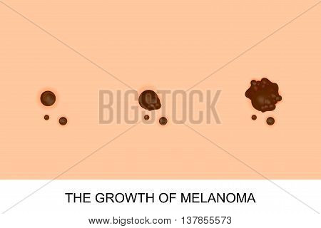 illustration of the growth of melanoma. oncology