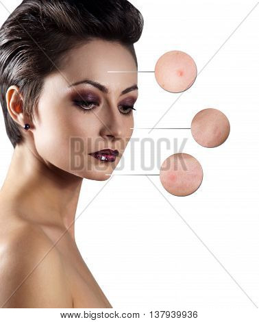 Portrait of young woman with magnifier circles. Skincare and health concept