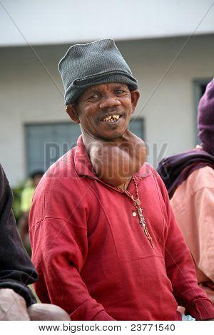 Streets Of Kolkata. Portrait Of Sick Man