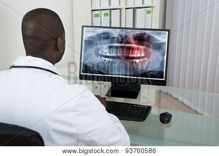 Dentist Looking At Teeth X-ray On Computer