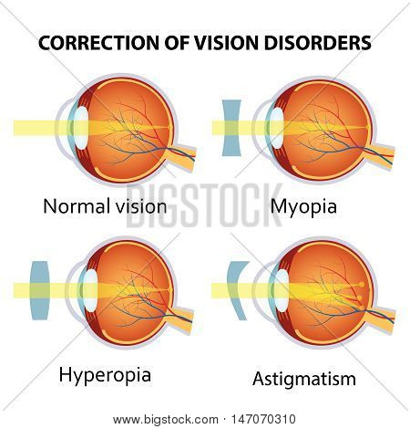 Correction of various eye vision disorders by lens. Hyperopia, myopia and astigmatism.