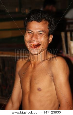 Yangon, Myanmar - November 5, 2011: Portrait of a kind and smiling man, revealing the effects of the prolonged use of betel nut upon the teeth and general oral health.