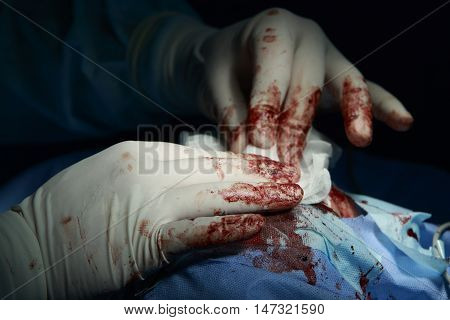 Hands of surgeon in white rubber gloves covered in blood pushing gauze to the wound