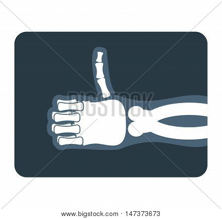 Thumbs Up X-ray. Bones Of Hand Shows All Good. Medical Illustration