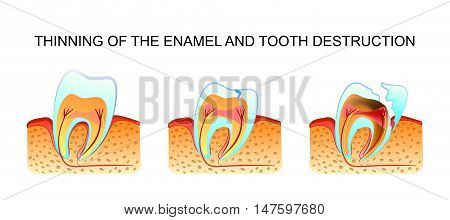 an illustration of the process of thinning of enamel and tooth decay