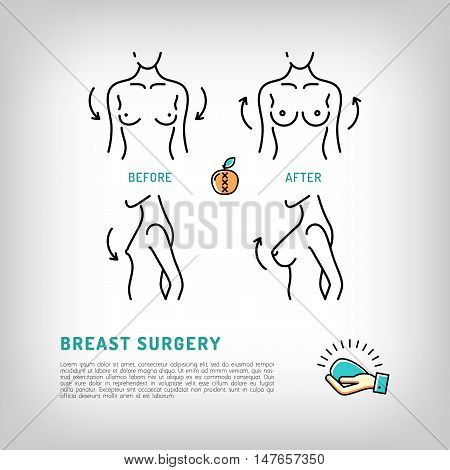 Augmentation Breast surgery logos, silicone implants. Body Plastic surgery concept thin line icons. Medical symbols and cosmetic surgery before and after. Vector illustration