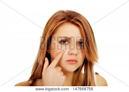 Teenage woman pointing on pimple on her cheek