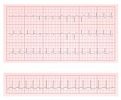 foto of ecg chart  - ECG heart chart scan vector illustration - JPG