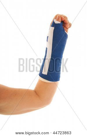 Broken wrist in blue gypsum isolated over white background