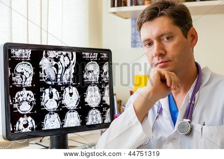 Doctor with an MRI scan of the Brain on Monitior
