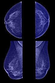 foto of mammogram  - Lateral mammogram of female breast - JPG