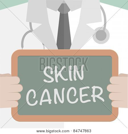 minimalistic illustration of a doctor holding a blackboard with Skin Cancer text, eps10 vector