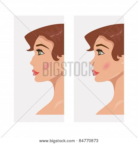 Woman Before And After Rhinoplasty. Vector Illustration