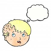 picture of ugly  - cartoon boy with ugly growth on head with thought bubble - JPG