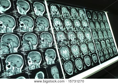 Brain X-ray001