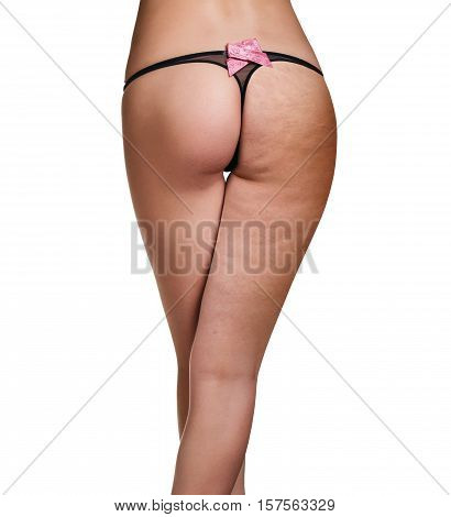 Female buttocks before and after treatment isolated on white