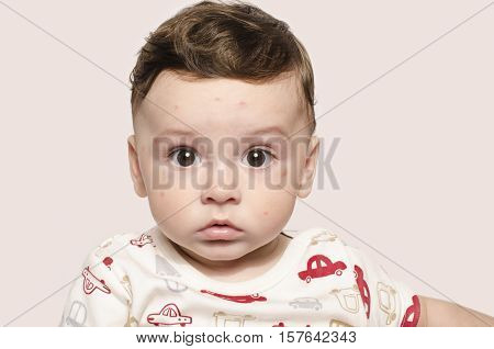 Portrait of a cute sick baby boy looking surprised at the camera. Adorable child with spots on his face form illness, mosquito bites, roseola, rubella, measles.