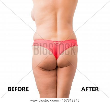 Before and after weight loss body comparison