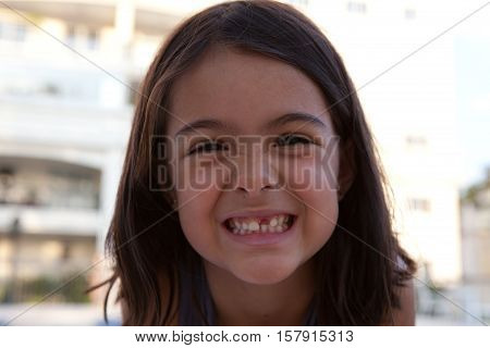 Brunette girl grins while showing missing tooth