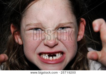 Young girl missing front teeth making scary face